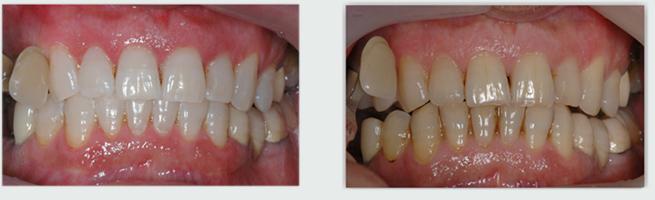 שיניים צהובות - לפני ואחרי הלבנת שיניים