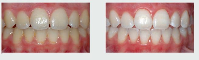 לפני- שיניים צהובות, אחרי הלבנה בשיטת ברייט סמייל - שיניים לבנות