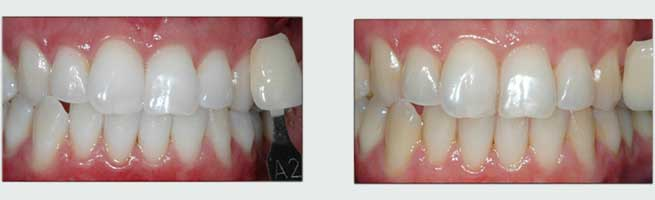 הלבנת שיניים - מדידת דרגת ההלבנה