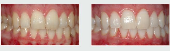הלבנת שיניים ביתית - לפני ואחרי