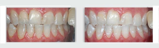 שיניים צהובות - כתמים בהירים נשארים גם אחרי ההלבנה