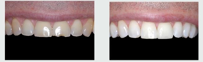 שחזור שן שבורה והלבנת שיניים לפני ואחרי