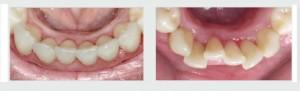 יישור שיניים עקומות לפני ואחרי
