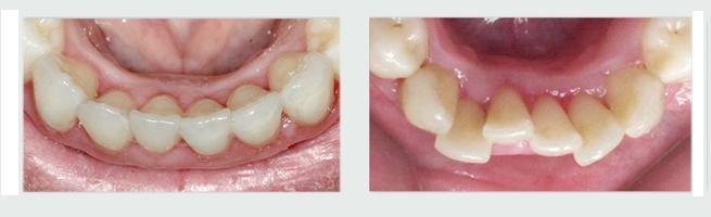יישור שיניים למבוגרים invisalign - לפני ואחרי