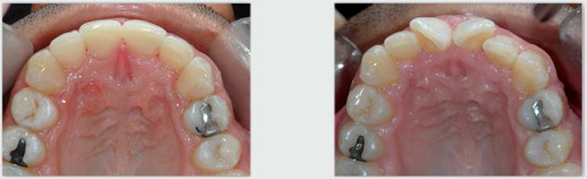 יישור שיניים למבוגרים אינויזליין - לפני ואחרי