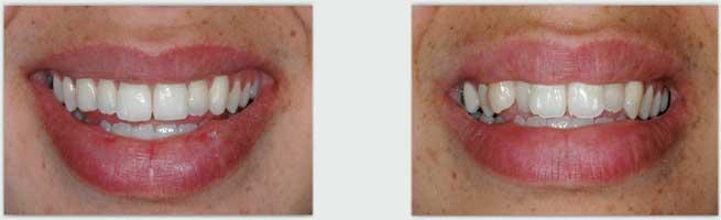 יישור שיניים למבוגרי ם - לפני ואחרי
