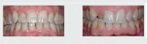 יישור שיניים לפני ואחרי