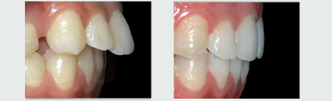 יישור שיניים ללא גשר - לפני ואחרי