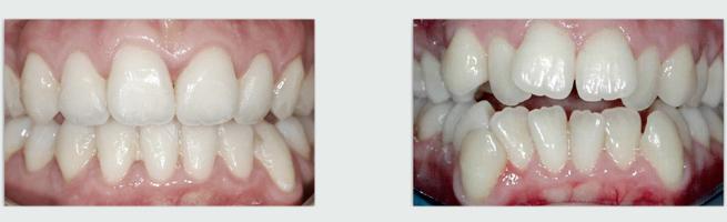 יישור שיניים באמצעות גשר חרסינה - לפני ואחרי