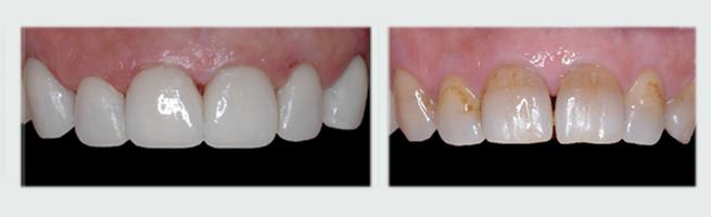 ציפוי חרסינה לשיניים - לפני ואחרי