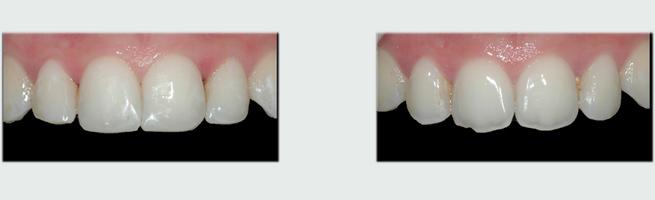 ציפוי שיניים לפני ואחרי - יישור מראה השן