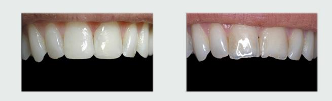 ציפוי שיניים להשלמת שיניים שחוקות - לפני ואחרי