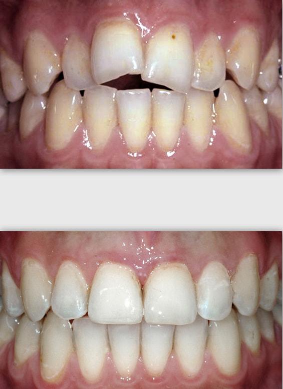 יישור שיניים עקומות בשיטת אינויזליין