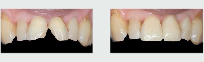ציפוי שיניים שעברו חבלה - לפני ואחרי