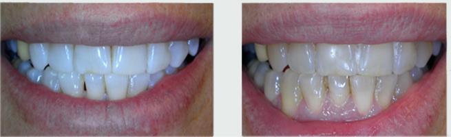 הלבנת שיניים לפני ואחרי. הכתר נשאר בצבע כהה יותר