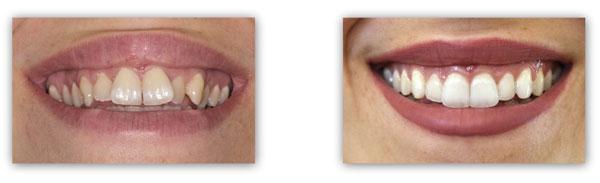 יישור שיניים שקוף אינוויזליין