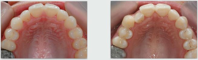 יישור שיניים שקוף - לפני ואחרי