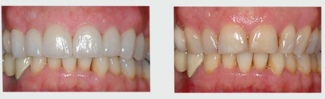 ציפוי חרסינה לשיניים לפני ואחרי