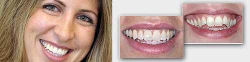 יעל הלבנת שיניים