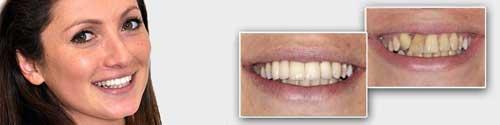 כתר זירקוניה למלי - טיפול אצל רופא השיניים ספי פורת