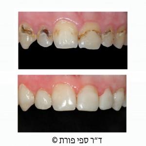 כתמים חומים על השיניים