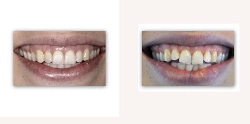 יישור שיניים בלתי נראה בשיטת Invisalign