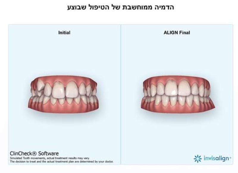 הדמיה- ישור שיניים שקוף