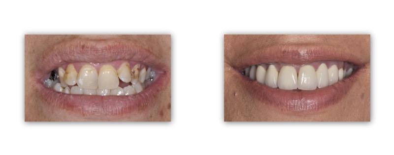 עקירת שיניים הרוסות, הסרת עששות ושיקום על ידי גשר חרסינה