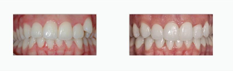 יישור שיניים שקוף ובלתי נראה בשיטת INVISALIGN