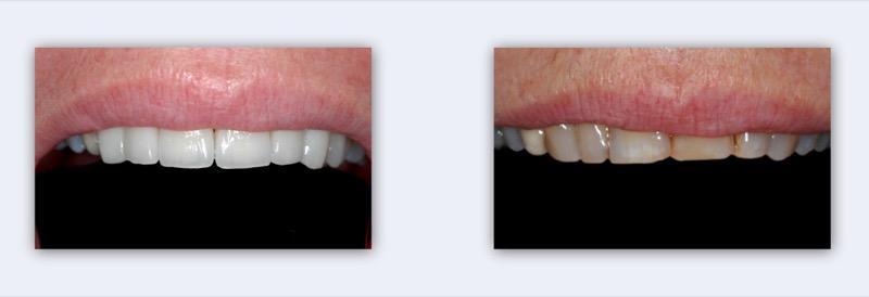 הלבנת שיניים, שלאחריה נבנו ציפויי חרסינה דקים (למינייטס) והודבקו על פני השיניים הקדמיות.