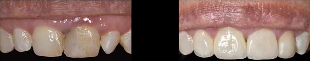 טיפול שיניים לפני ואחרי