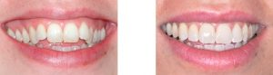 יישור והלבנת שיניים אצל יעל