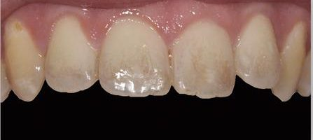 כתמים בשיניים:לפני ואחרי