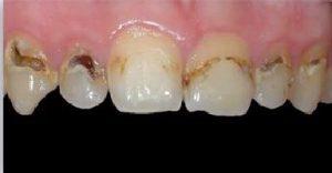 כתמים בשיניים: עששת