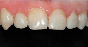 כתמים בשיניים: אחרי