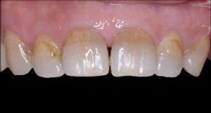 כתמים בשיניים: לפני