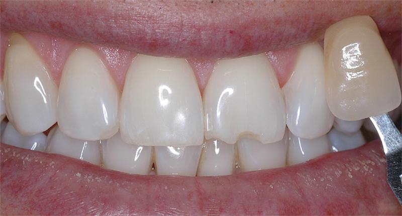 """הלבנת שיניים - השיניים לאחר ההלבנה שלידן """"שן"""" בצבע של השיניים לפני הטיפול"""
