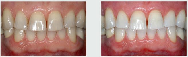הלבנת שיניים - לפני ההלבנה ושיניים לבנות אחרי ההלבנה