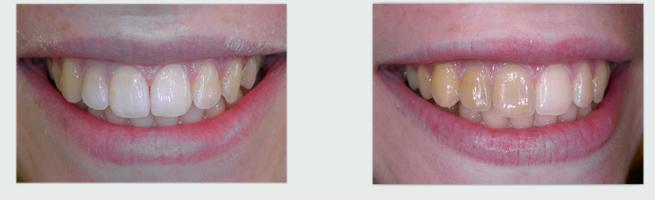 שיניים צהובות לפני ואחרי הלבנת שיניים פנימית