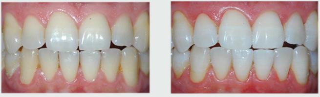 שיניים לבנות אחרי הלבנת שיניים ותמונה של השיניים לפני ההלבנה