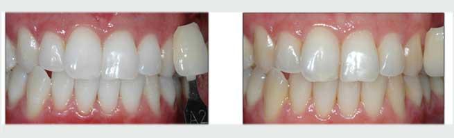 שיניים צהובות לפני לבנת שיניים ושיניים לבנות אחרי ההלבנה