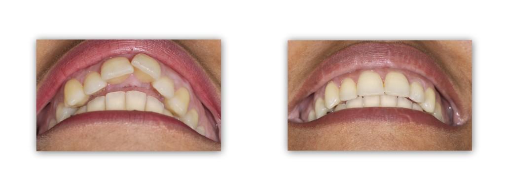 יישור שיניים בולטות