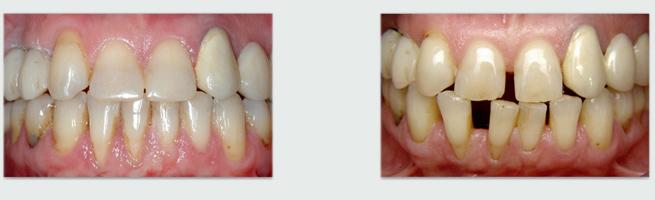יישור שיניים עם גשר שקוף - לפני ואחרי