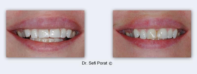 ציפוי שיניים לפני ואחרי - החלפת כתרים והארכת השיניים הקדמיות