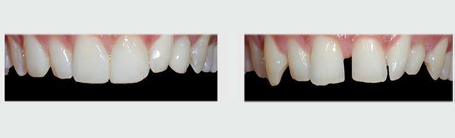 ציפוי שיניים לסגירת רווחים בין השיניים