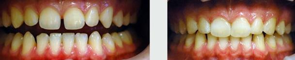רווח בין השיניים