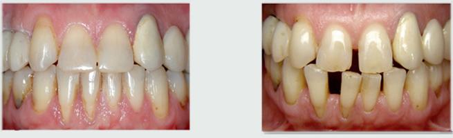 סגירת רווחים בשיניים בעזרת יישור שיניים - לפני ואחרי