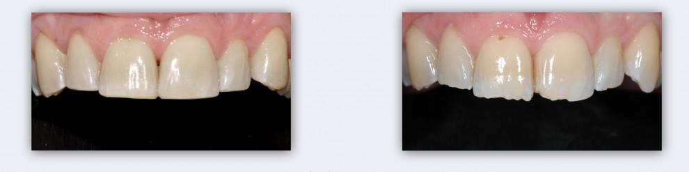 השלמת שיניים שבורות בעזרת חומרים קומפוזיטים