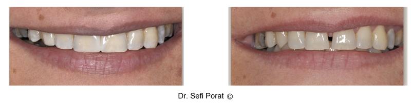 הלבנת שיניים וסגירת רווח בין שיניים