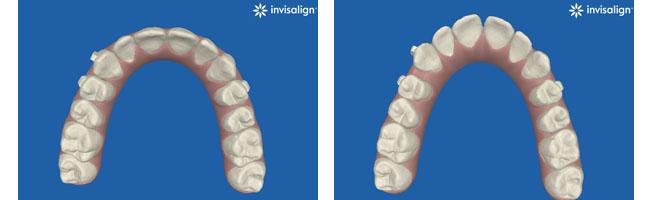הדמיית אינויזליין ליישור שיניים שקוף לפני ואחרי